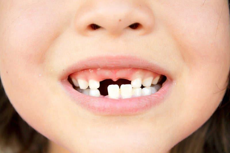 Giải thích tích cực về giấc mơ rụng răng