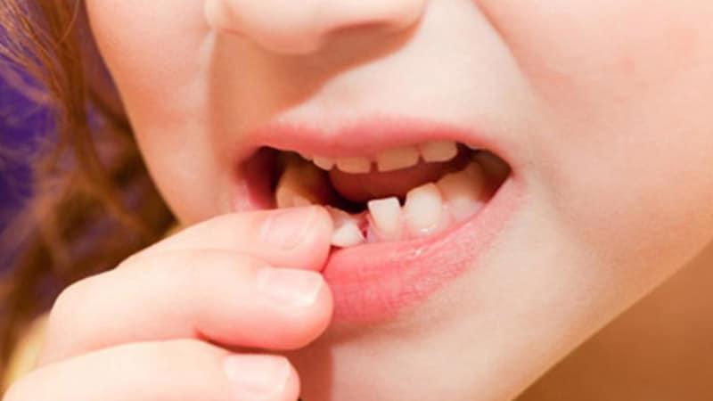 Giải thích tiêu cực về giấc mơ rụng răng